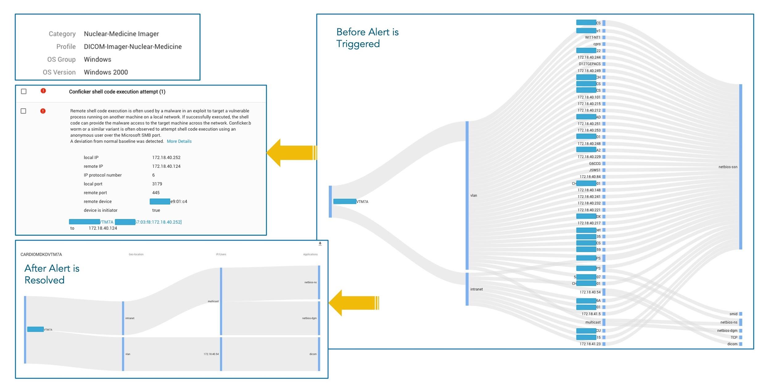 通常のネットワーク動作と被害を受けたネットワーク動作。左下の図は、複数の通常のネットワーク宛先へのSMBやDICOMなど、通常のアプリケーションの使用状況を示しています。これに対して、右側の図は、環境内のほぼすべてのデバイスへの多数の同時接続など、マルウェアに感染したデバイスの非常にアグレッシブなネットワーク動作を示しています。これは、マルウェアが横方向に移動しようとしていることを明確に表しています。